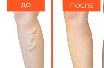 Лечение варикоза ДО и ПОСЛЕ   Флебологи СПб